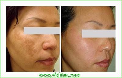 Điều trị nám da mặt tận gốc với hiệu quả đáng bất ngờ